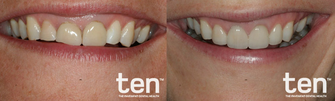 Veneers Before And After Image